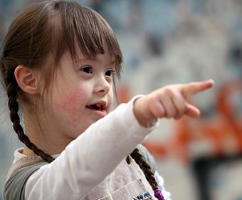 CURIOSIDADE – Brasil possui cerca de 270 mil pessoas com Síndrome de Down